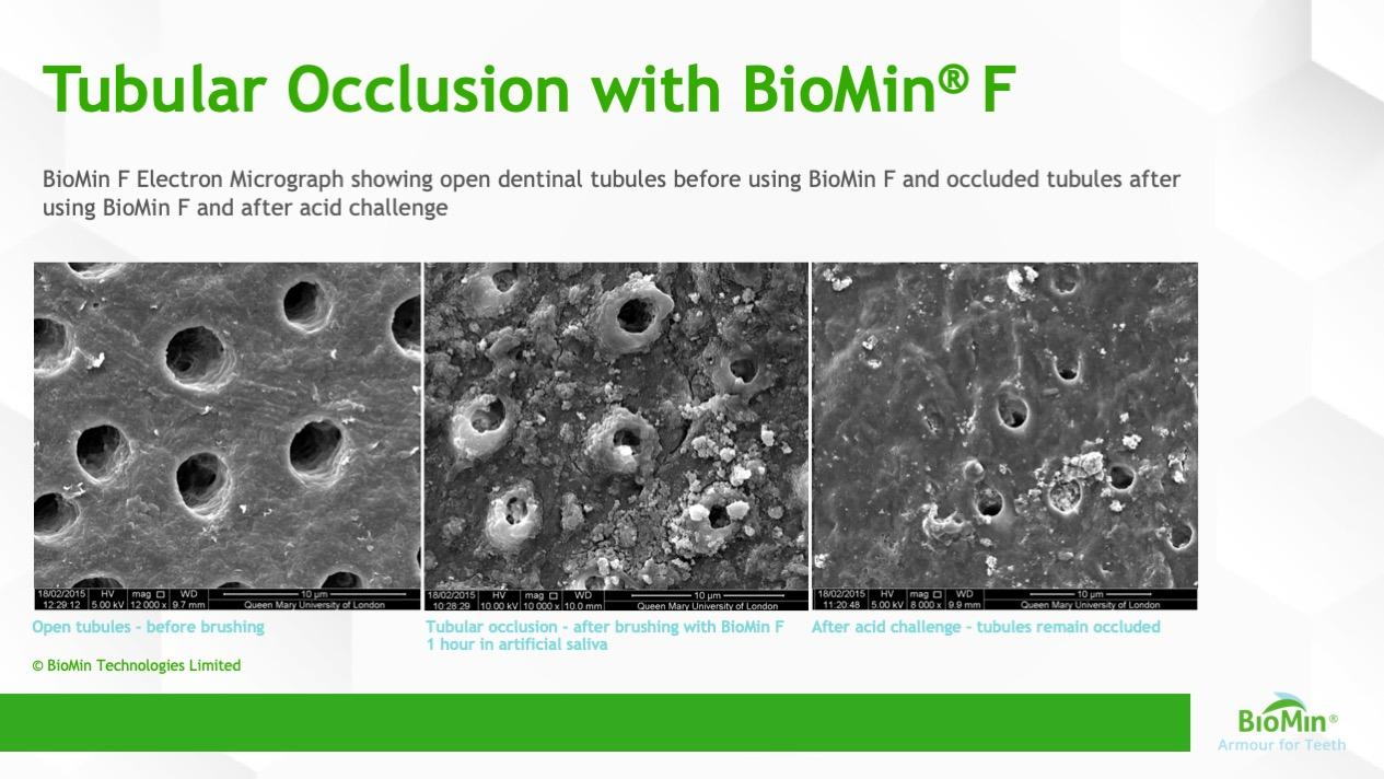 Tubular Occlusion with BioMin® F